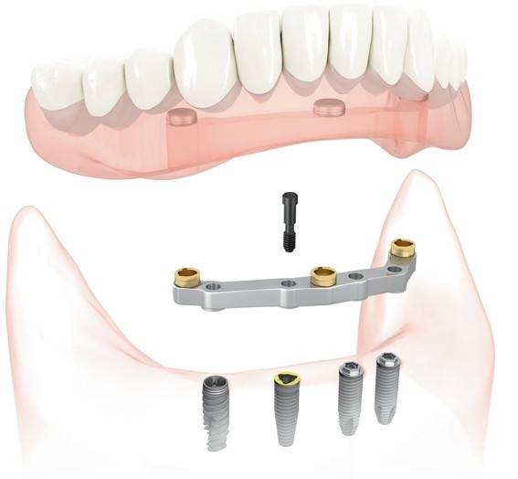 Implant Supported Dentures diagram used by Salem Dentist at Oak Park Dental.